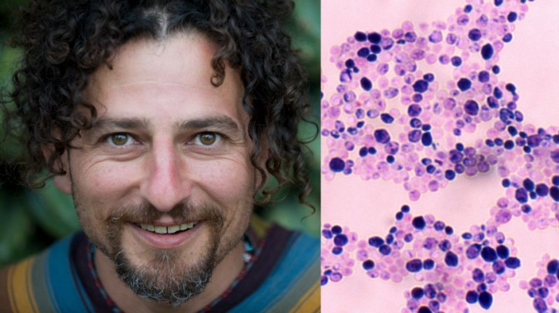 Candida Cleanse Treatment So Overgrowth Dies Davidwolfe Com