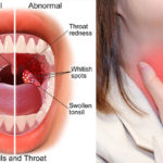 How To Get Rid Of Tonsillitis Naturally And Fast