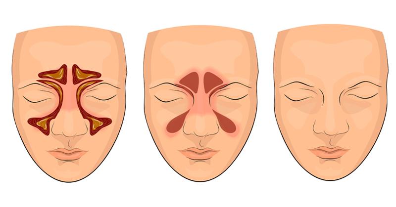 Natural Treatment Sinus Congestion