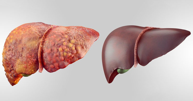 Foods To Eat To Help Fatty Liver Disease