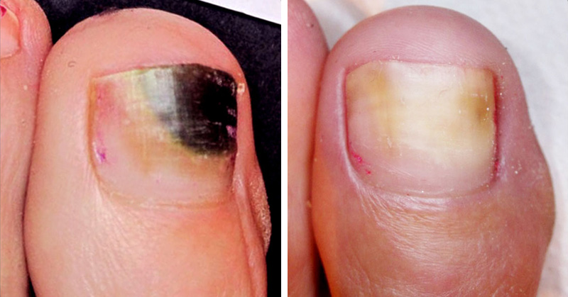 Fungus On Toes Natural Treatment