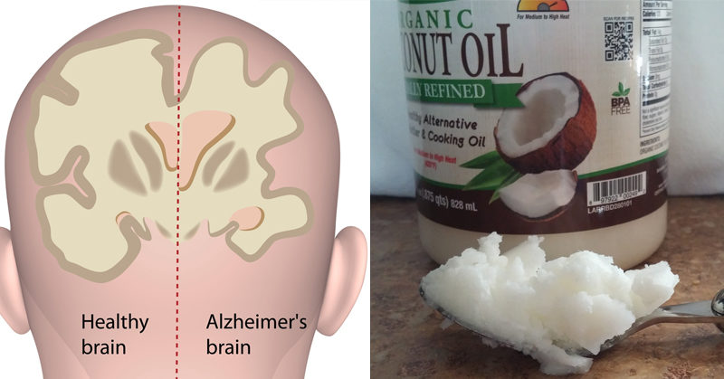 Natural News Coconut Oil Alzheimer S